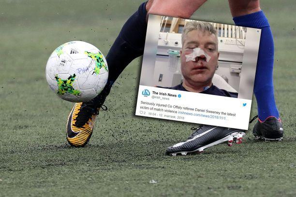 Jalkapallotuomari joutui Irlannissa pahoinpidellyksi amatööriottelun jälkeen.