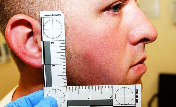 Wilsonin vammat tutkittiin perusteellisesti tilanteen jälkeen.