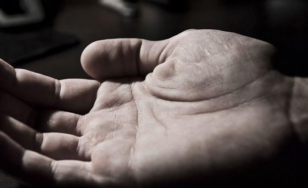 Siirretystä kädestä tulee yleensä käyttökelpoinen, vaikkakaan ei alkuperäisen veroista. Potilas voi pystyä sen avulla pukemaan, solmimaan kengännauhat, kirjoittamaan sekä ajamaan pyörällä ja autolla. Kuvituskuva.