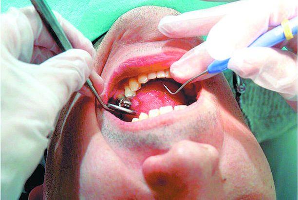 Näsin hammashoitolassa Porvoossa on todettu tartuttava keuhkotuberkuloosi. Kuvituskuva.