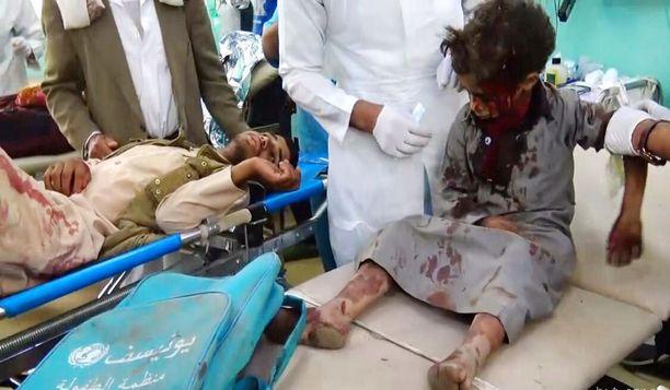 Pommituksen uhriksi joutuneita poikia sairaalassa Saadassa 9. elokuuta.