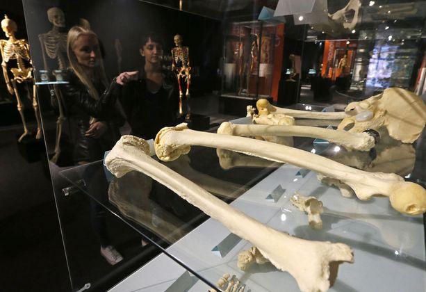 Luukauppa kukoisti aikoinaan Intiassa. Kuvituskuva Pietarissa järjestetystä ihmisen anatomiaa käsittelevästä näyttelystä.