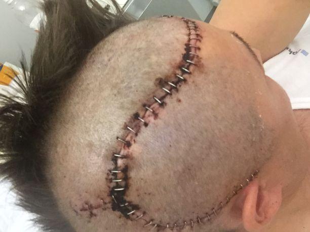 Henry Keisala joutui pahoinpitelyn seurauksena aivoleikkaukseen.