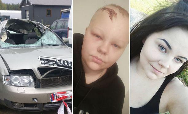 Hirvikolari viilsi 15-senttisen kalloon ulottuvan haavan Anniinan päähän. Auto meni lunastuskuntoon.