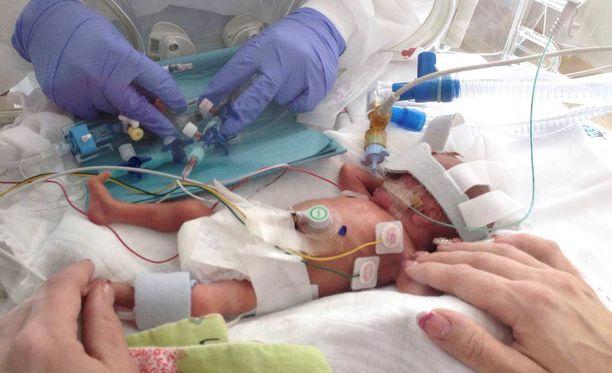 Säde syntyi kiireellisellä sektiolla Turun yliopistollisessa sairaalassa. Hän painoi 635 grammaa ja oli 31 senttiä pitkä. Säde eli 28 päivää.
