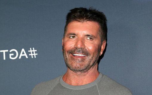 Simon Cowell uusi hampaansa – halusi luonnollisemman hymyn: lopputulos häikäisee
