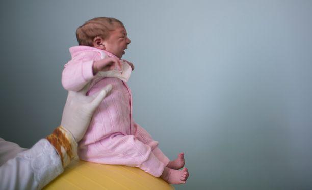 Kaksiviikkoinen mikrokefaliaa sairastava Sophia fysioterapiassa Brasilian Campina Grandessa.