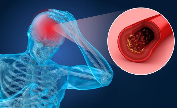 Muistisairaus on usein monen osatekijän summa. Yksi tekijä on valtimoiden kunto ja verenpaine.