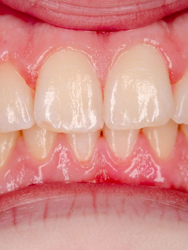 Yli puolessa tapauksista suusyöpä on kielen reunassa, suun pohjassa tai ikenessä. Kuvassa nähdään terve suu.
