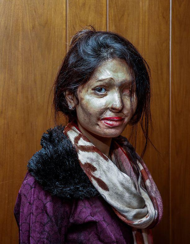 Meena Khatoon joutui ex-miehensä hyökkäyksen kohteeksi.