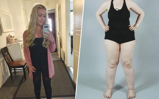 Yasmina treenasi ja näännytti itseään, mutta turvonneet jalat pysyivät: syyksi paljastuikin tuntematon sairaus