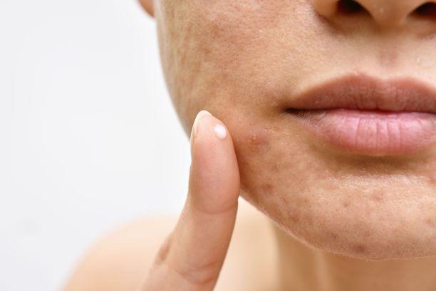 Tavallinen finnikin on turvallisempi nitistää ihonhoitotuotteilla kuin puristamalla, jotta ihoon ei jää arpea.