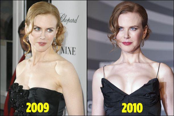 Nicolen juhlatyyli oli lähes identtinen viimevuotiseen verrattuna - paitsi rintojen osalta.