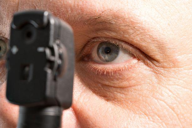 Tyypin 2 diabeetikolla silmän verkkokalvosairautta eli retinopatiaa voi esiintyä jo diabeteksen diagnoosivaiheessa. Muun muassa hyvä sokeritasapaino ja verenpaine suojaavat lisäsairaudelta.