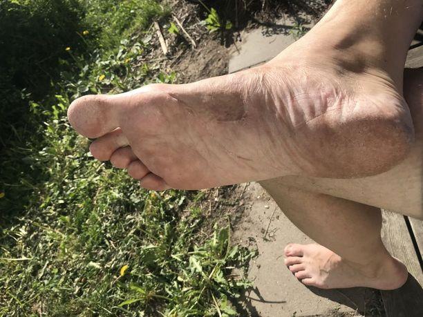 Vammautunut jalka on parantunut hyvin myös ulkoisesti.