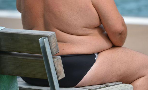 Ylipainon kertyminen on seurausta liiallisesta kalorinsaannista.