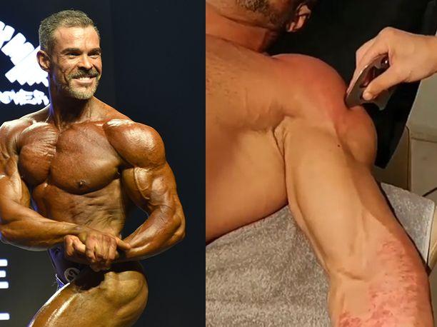 Toni Perkkiö kertoo, että hänellä lihaskalvokäsittely ei tunnu miltään, mutta vastaavasti tavallinen hieronta sattuu.