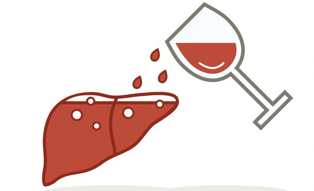 Rasvamaksaan liittyy usein alkoholinkäyttöä, mutta rasvamaksan voi saada myös ilman viinalla läträämistä.