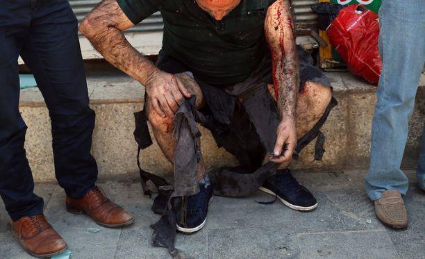 Viranomaisten mukaan iskussa loukkaantui noin 100 ihmistä. Kuvassa räjähdyksessä haavoittunut mies odottaa hoitoonpääsyä.