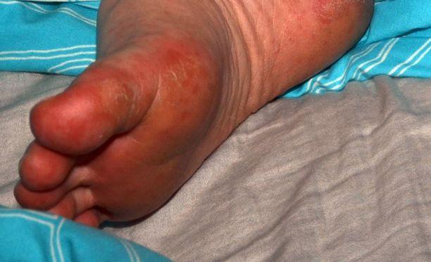 Käveleminen ei onnistunut, kun rakkulat levisivät Kaisan jalkapohjiin.