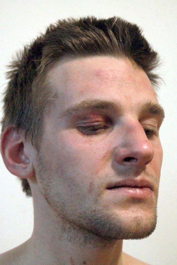 Ilja Kapustinia hakattiin hänen mukaansa eri puolille kehoa, muun muassa kasvoihin.