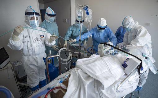 Hengityskoneestakaan ei ollut enää apua – riskialtis keuhkoleikkaus pelasti 50-vuotiaan koronapotilaan Etelä-Koreassa
