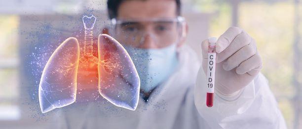 Koronaviruksen aiheuttama tauti on vaarallinen erityisesti iäkkäille.