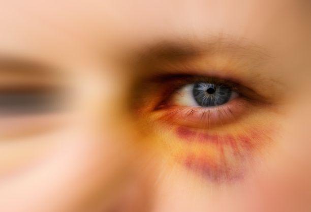 Suomalaiset perheväkivallan uhrit jäävät usein yksin. Kuvituskuva.