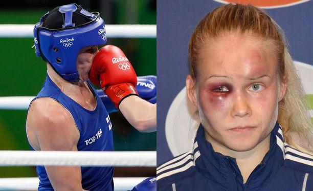 Mira Potkosen ja Petra Ollin kasvot ovat välillä kokeneet taistoissa kovia, mutta se ei ole näitä naisia lannistanut.