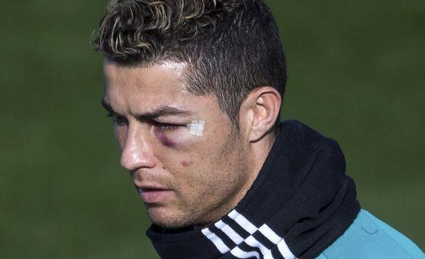 Ronaldo palasi harjoituksiin tikattuna ja silmä mustana.