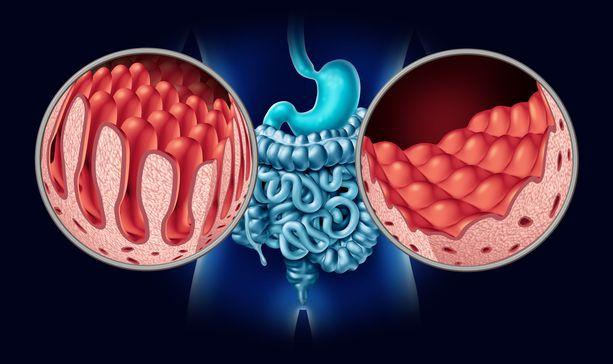 Dientamoeba fragilis on ollut aiemmin huonosti tunnettu. Se pääsee hoitamattomana ärsyttämään suolta, jota voi seurata yliherkkyyttä ruoka-aineille.