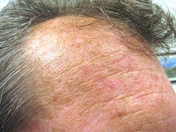 Aurinkokeratoosi voi näyttää aluksi tavalliselta ihottumalta.