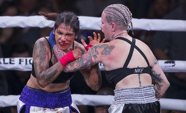 Alma Garcia (vasemmalla) ja Bec Rawlings ottivat yhteen paljain nyrkein Cheyennen kaupungissa Yhdysvalloissa. Kehätuomarin mielestä Garcian naama oli kahden erän jälkeen siinä kunnossa, että ottelu keskeytettiin.