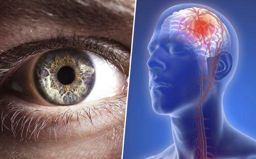 Nämä kolme hälytysoiretta viittaavat aivoinfarktiin – silloin soitettava heti 112