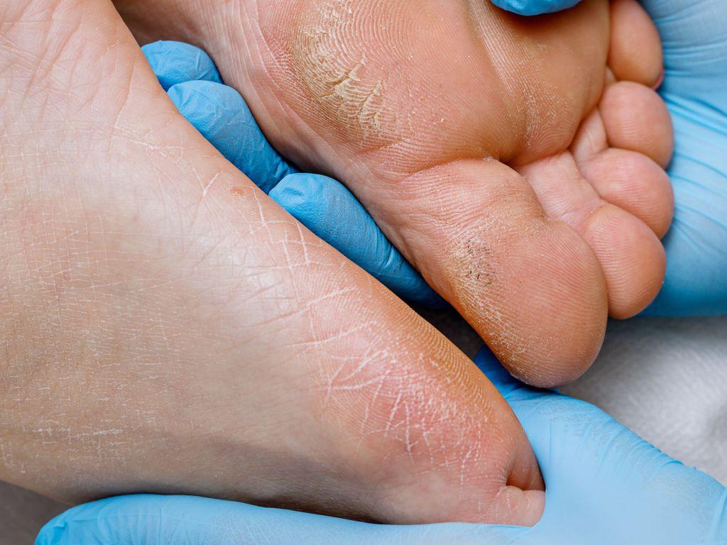 Hiertymät, kovettumat ja haavat voivat kertoa paitsi epäsopivista kengistä myös siitä, että taustalla on jokin sairaus.