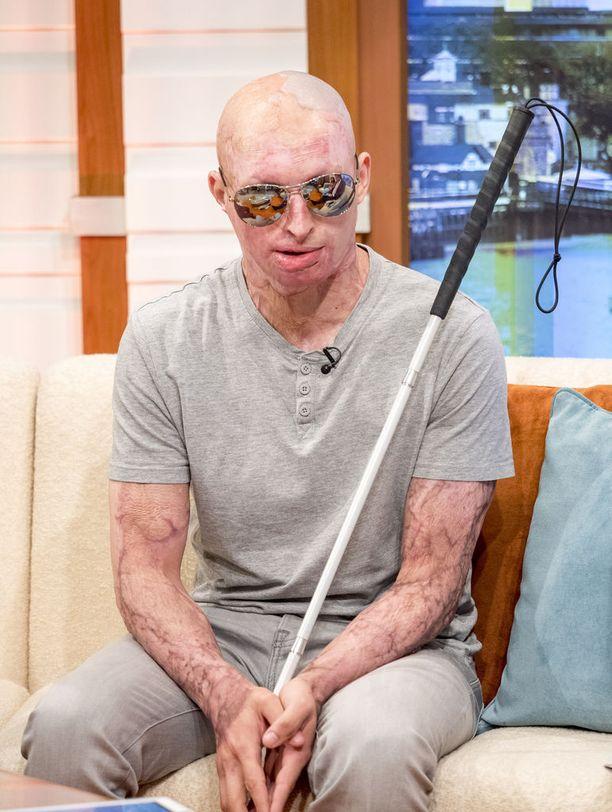 Daniel Rotariu vammautui vakavasti vuosi sitten happoiskussa. Hän puhui asiasta Good Morning Britain -ohjelmassa maanantaina.