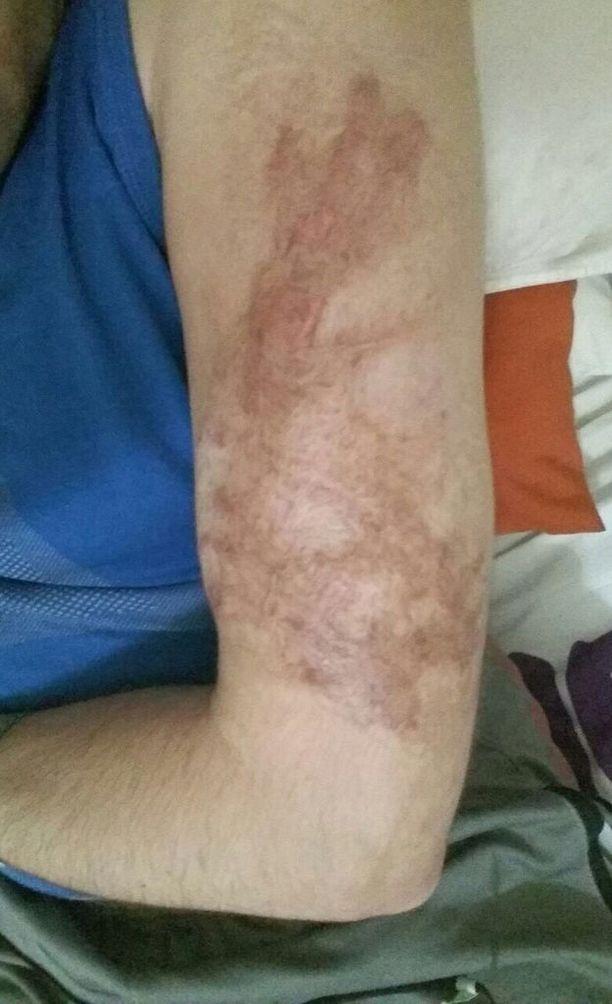 Ahmadilla oli käsivarressa tatuointi, jonka militian jäsenet polttivat pois hitsauspillillä.