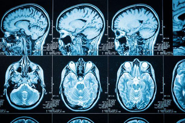 Aivokasvaimilla ei ole olemassa tiettyä selvää oirekuvaa. Kuvituskuva.