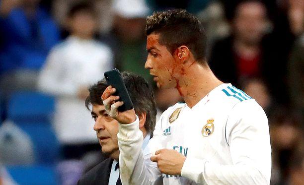 Cristiano Ronaldo sai ikävän vekin kasvoihinsa sunnuntaina.