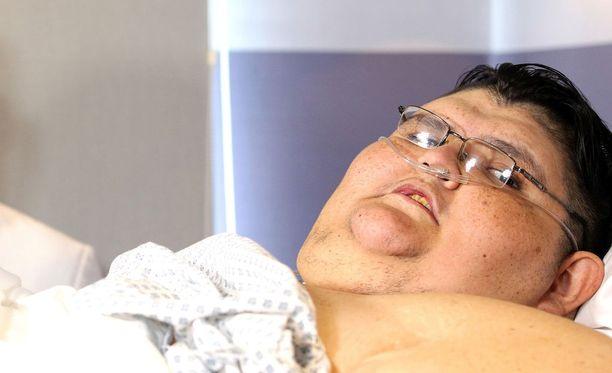 Meksikolaiselle Juan Pedro Francolle on tehty laihdutusleikkaus Guadalajarassa Meksikossa. Kuvassa Franco samalla klinikalla viime toukokuussa.