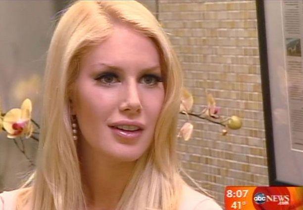 Elämästään tosi-tv-viihdettä tekevä Heidi Montag on avautunut kauneusleikkauksistaan tv-ohjelmissa ja lehtihaastatteluissa.