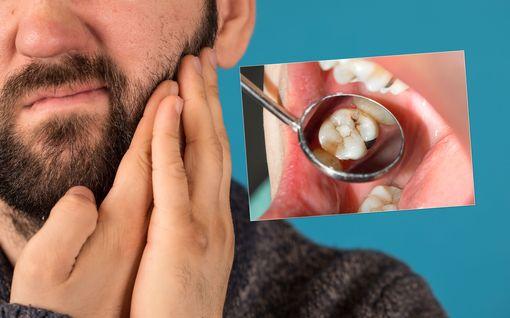 Jo alkanut reikä hampaassa on mahdollista pysäyttää - 5 yksinkertaista keinoa