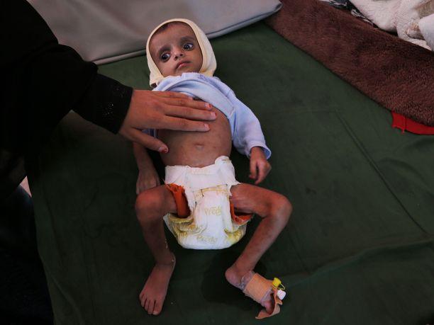 Jemeniläislapsi sai hoitoa vakavaan aliravitsemukseensa viime perjantaina terveyskeskuksessa Sanaassa.