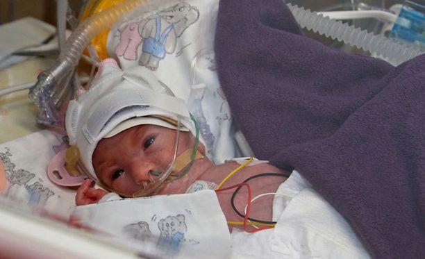 875-grammaisena syntyneellä tytöllä tulee olemaan kaikki hyvin.