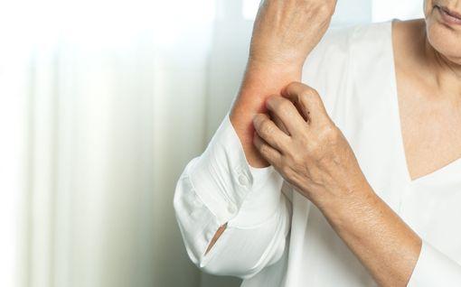 Suurimmalle osalle tulee iän myötä jokin hoitoa vaativa ihotauti - näin tunnistat ja hoidat