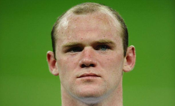 Keväällä 2011 Rooney kyllästyy hiustensa ohenemiseen ja päättää hankkia siirrännäisen.