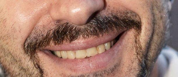 Movember-viiksien kasvattaminen on kanadalaisen opiskelijatoimittajan mukaan seksististä ja rasistista.