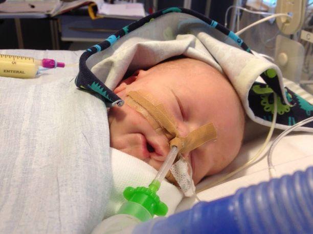 Remo-pojan alkutaival oli kova. Kuva otettu Tukholman Karoliinisessa yliopistosairaalassa.