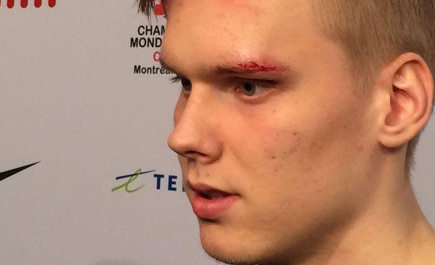 Olli Juolevin silmäkulma aukesi Latvia-kamppailun tuoksinassa.