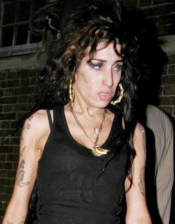 Amy Winehouse sai pahan lääkereaktion.